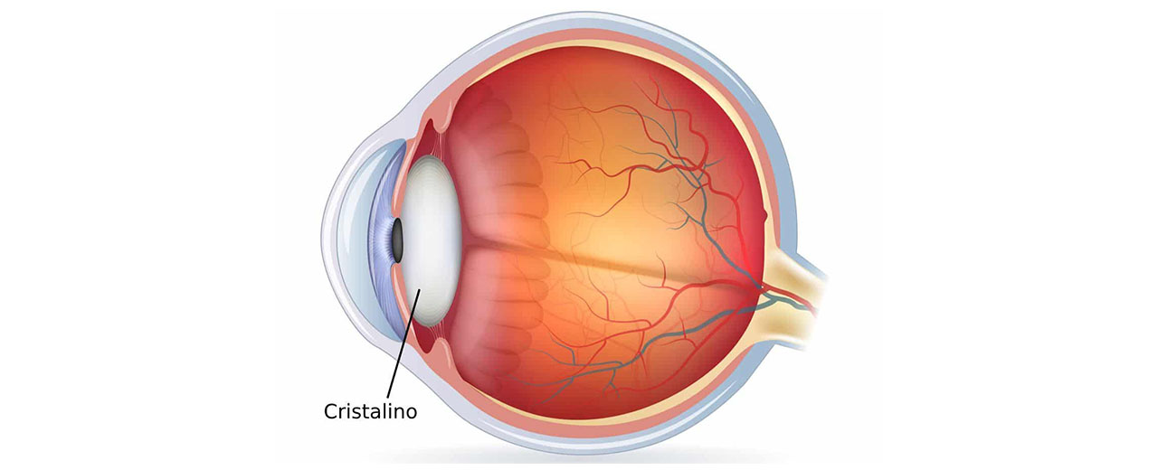 cristalino-lente-dentro-del-ojo-optimania