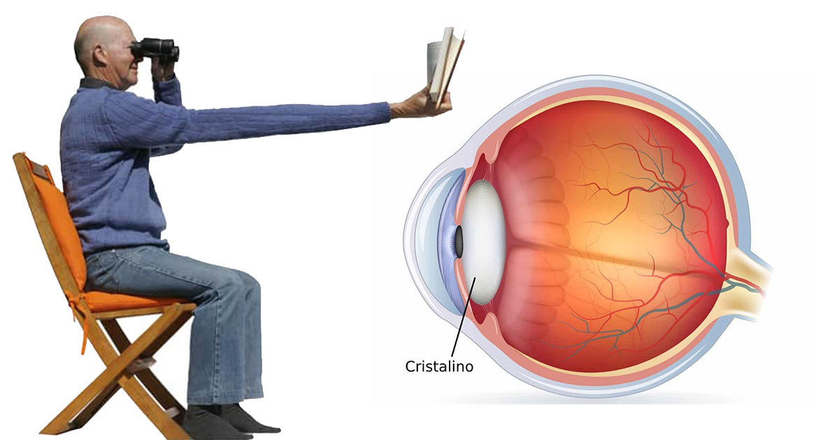 presbicia-miopia-centrilen